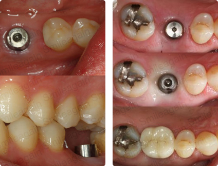 Dental Implant Treatment in Mumbai
