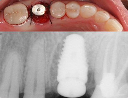 Dental Implant in Mumbai